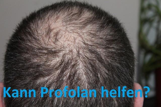 Profolan Haarwuchsmittel